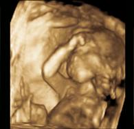 Leistung | Schwangerschaftsvorsorge | 3+4 D Ultraschall | Galerie Bild 0