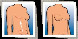 Leistung | Brustsprechstunde | Brustwiederherstellung
